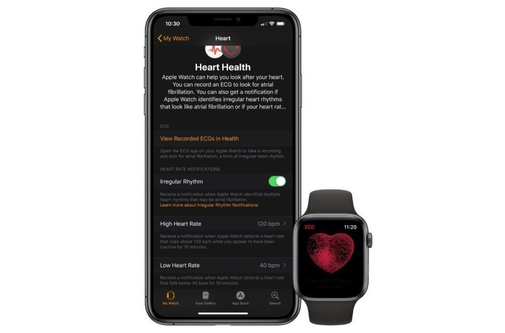 apple watch series 4 ecg 1000x660 Version finale de watchOS 5.2 disponible : électrocardiogramme activé dans 20 nouveaux pays