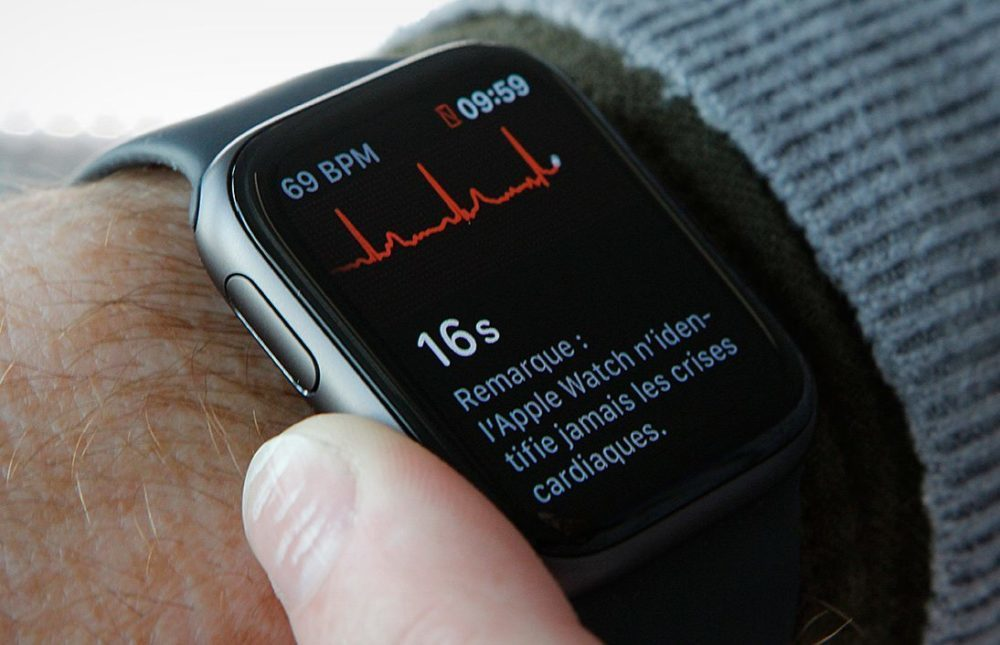 ECG App Apple Watch 1 1000x645 Apple confirme larrivée de lélectrocardiogramme (ECG) sur lApple Watch au Canada