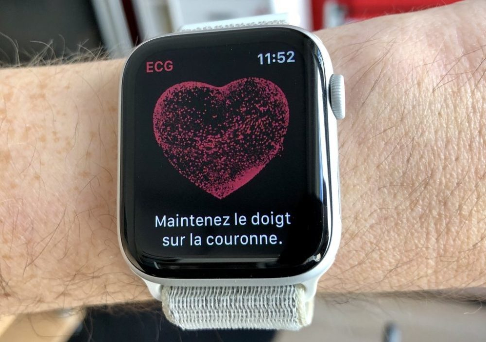 ECG App Apple Watch 1000x705 Lélectrocardiogramme sur lApple Watch va débarquer sous peu au Canada